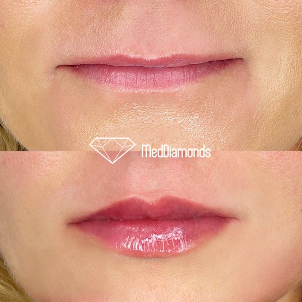 Usta przed i po zabiegu