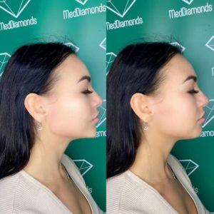 Efekt przed i po zastosowaniu kwasu hialuronowego